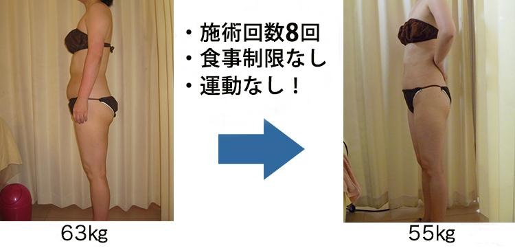 施術回数12回、食事制限なし、運動なし!75kg→67kg