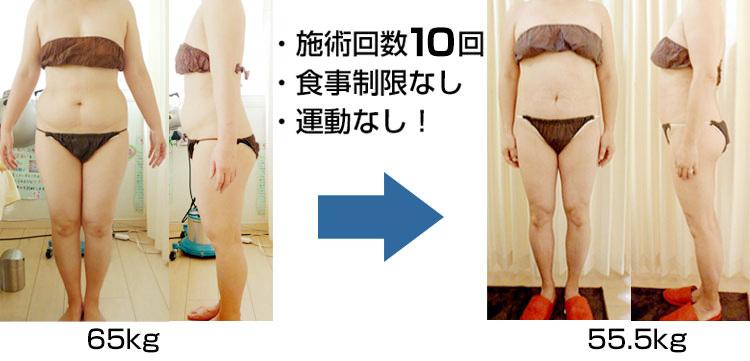 施術回数10回、食事制限なし、運動なし!65kg→55.5kg