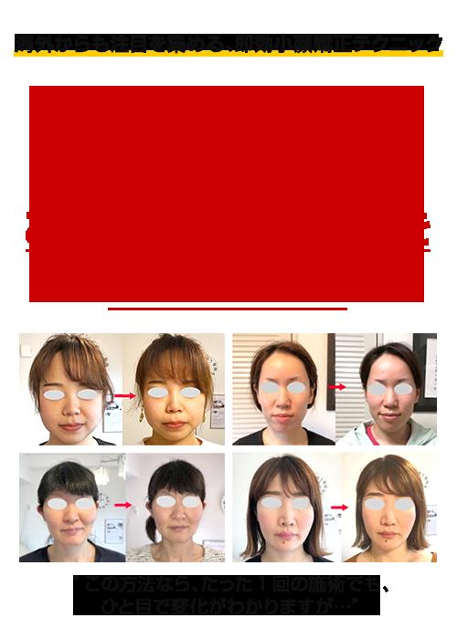 海外からも注目を集める即効「小顔矯正」テクニックが今回、ご自宅で学べますが…