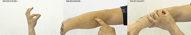 切皮痛を発生させず、施術を優位に進める押手とは?
