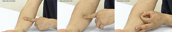 患者さんが嫌がる内出血は、事前に防げます