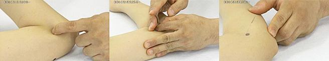 日常生活で肘痛に悩む患者さんが、声をあげて喜びます
