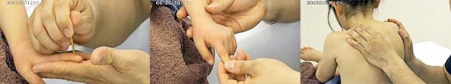 小児鍼を学べる機会は多くありません。甲斐先生の院では、多くの保護者が子どもに鍼灸を受けさせます