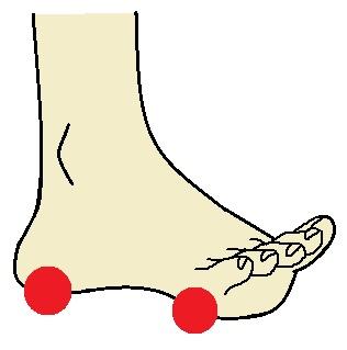 足の指が開き、反っている状態になっている