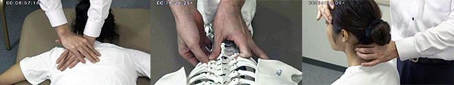 短時間で、頸部椎間板ヘルニアを施術