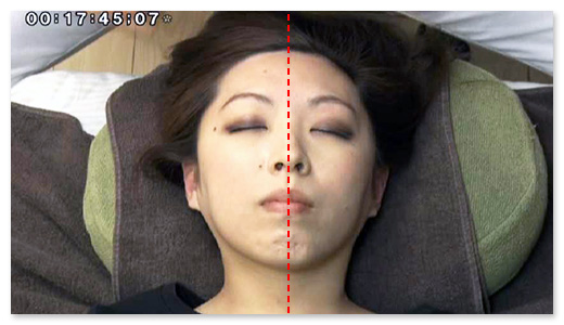 施術を受けた右側の顔がスッキリし、リフトアップしています