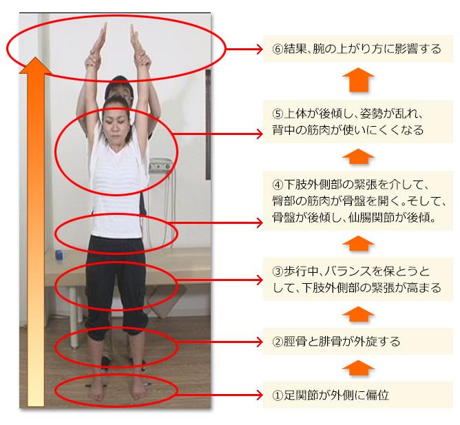 姿勢を改善し、肩の可動域をアップ