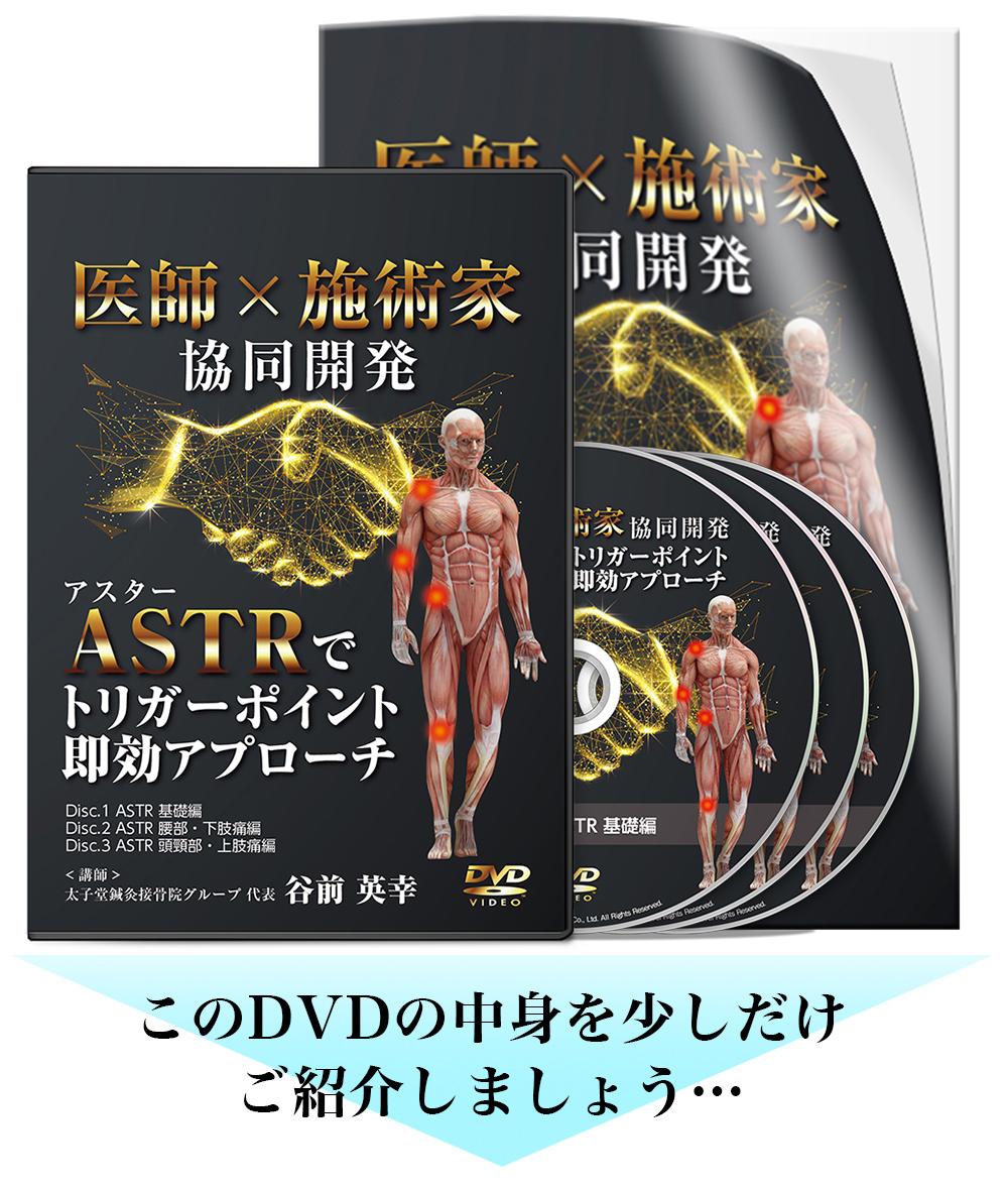 医師×施術家協同開発ASTRでトリガーポイント即効アプローチ